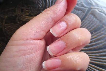 美容師おすすめ手荒れ対策!手荒れを治す方法にはハンドクリームと綿手袋が効く
