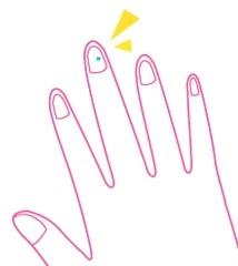 手の爪に白い斑点が!病気なの?