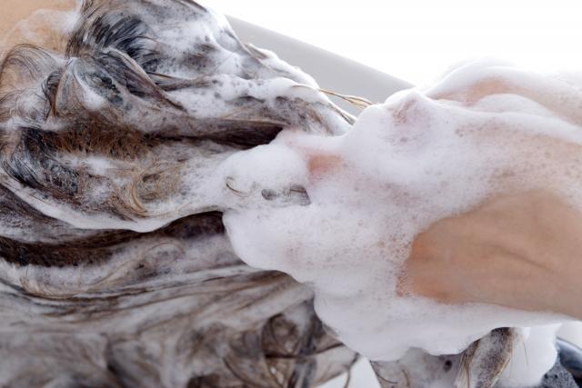 頭皮の乾燥が原因のフケや痒み対策はシャンプーが基本!対策方法を紹介!
